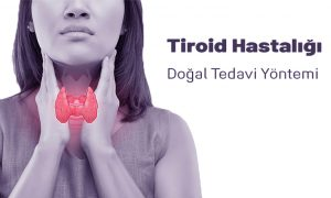 Tiroid Hastalığı Ve Doğal Tedavi Yöntemi